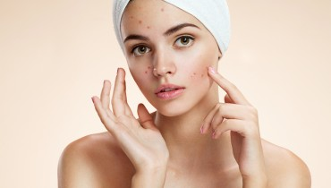 What Is The Cause Of Adult Acne